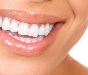 Cara Simple Ini Ternyata Sudah Cukup Hilangkan Karang Gigi!